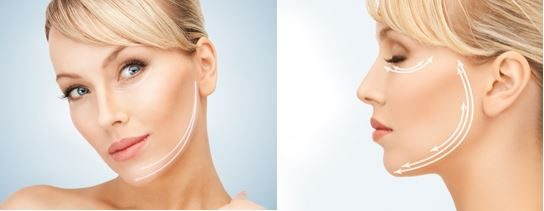Jowl LIFTING and Eye Firming;